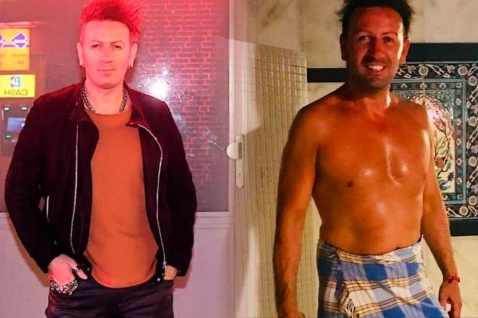 Fotomontage: Reality-Star Ennesto Monté ließ sich seinen Penis mit Eigenfett aus dem Bauch vergrößern.