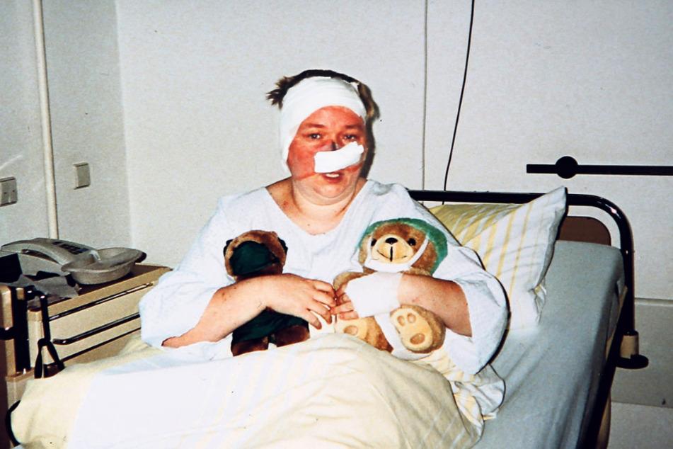 Schon 33 Operationen musste die Dresdnerin über sich ergehen lassen. Ein Kunststück, darüber nicht den Lebensmut zu verlieren.
