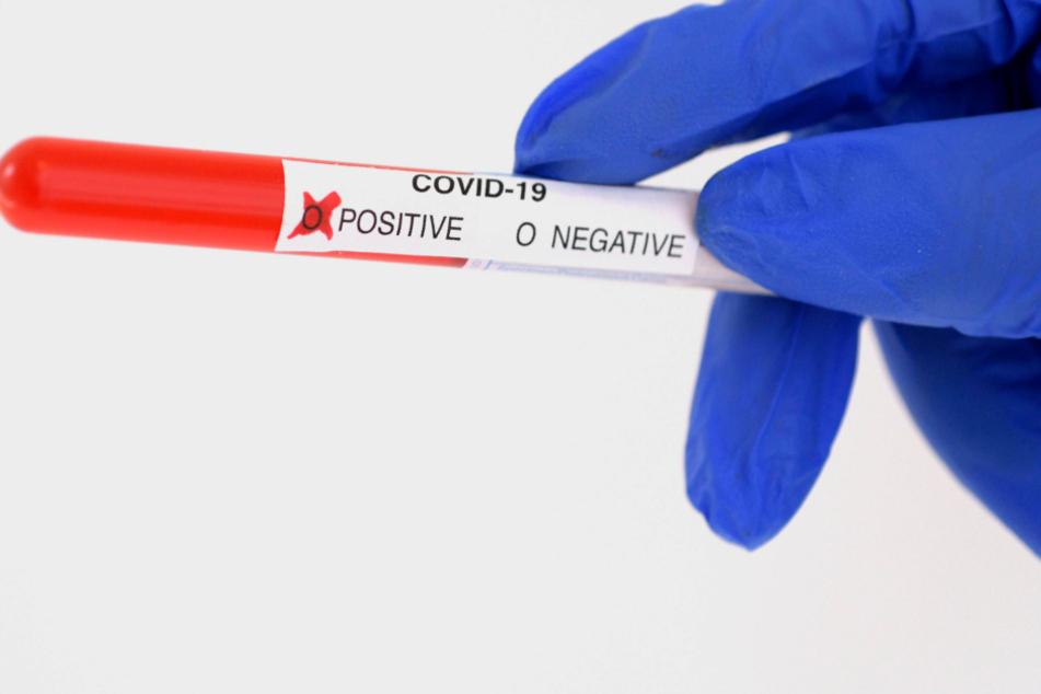 50 neue Fälle an einem Tag! Corona zwingt zu weiteren Beschränkungen
