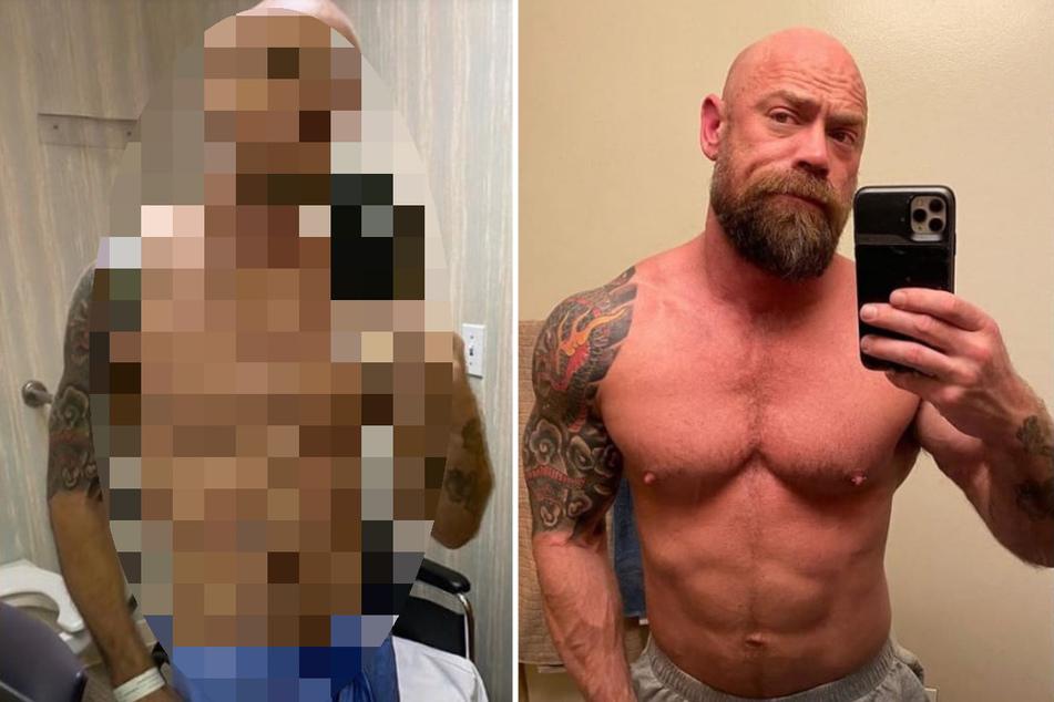 Krankenpfleger verliert 23 Kilo wegen Covid-19 und zeigt schockierende Vorher-Nachher-Fotos