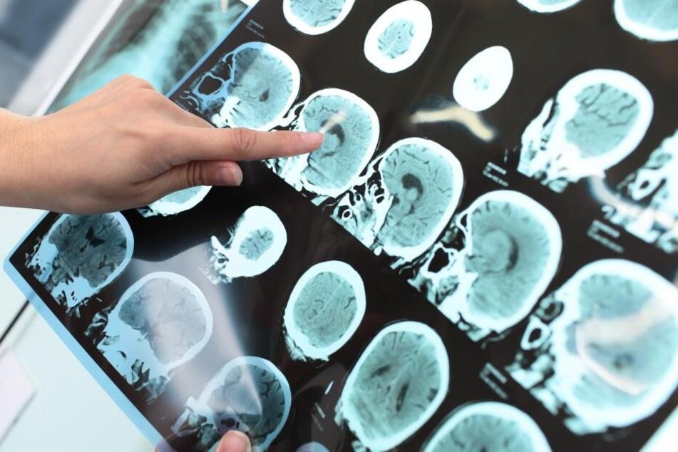 Die Ärzte fanden bei einer CT-Untersuchung einen Gehirntumor. (Symbolbild)