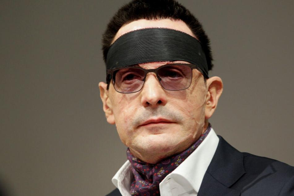 Bernhard Günthers Gesicht wurde mit Säure entstellt.