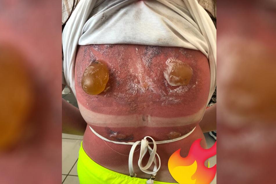 Auf dem Rücken der 16-Jährigen hatten sich zwei schlimme Brandblasen gebildet.
