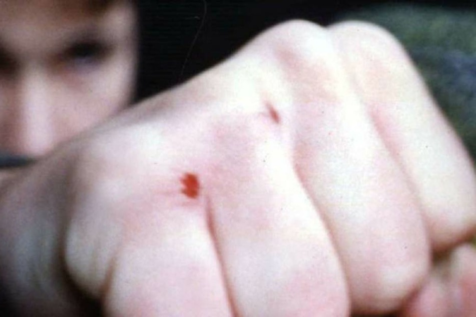 Der Betrunkene schlug das Mädchen ins Gesicht.