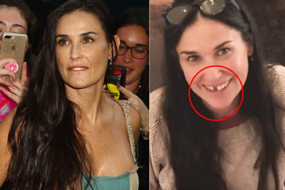 Darum sind Schauspielerin Demi Moore die Zähne ausgefallen