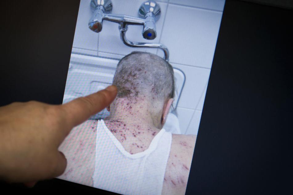Die Obdachlosen-Ärztin Jenny De la Torre zeigt einen von Krätze befallenen Patienten.