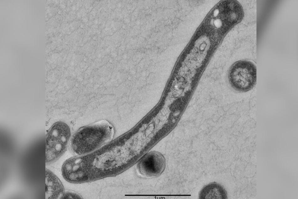 Ein Tuberkulosebakterium stark vergrößert. In Deutschland wurde die Krankheit im vergangen Jahr 6000 diagnostiziert.