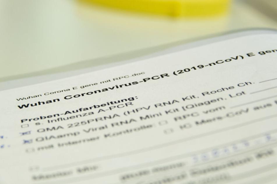 """Eine Akte mit der Aufschrift """"Wuhan Coronavirus"""" liegt in einem Labor des Landesgesundheitsamtes Niedersachsen (NLGA)."""