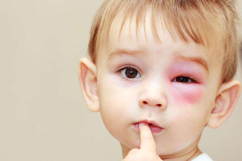Einige Kinder reagierten allergisch auf die Bienenstiche. (Symbolbild)