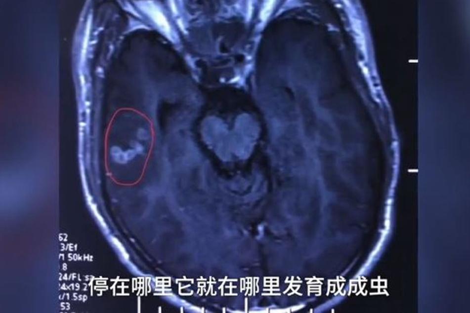 Auf den Röntgenaufnahmen war der Bandwurm deutlich zu sehen.