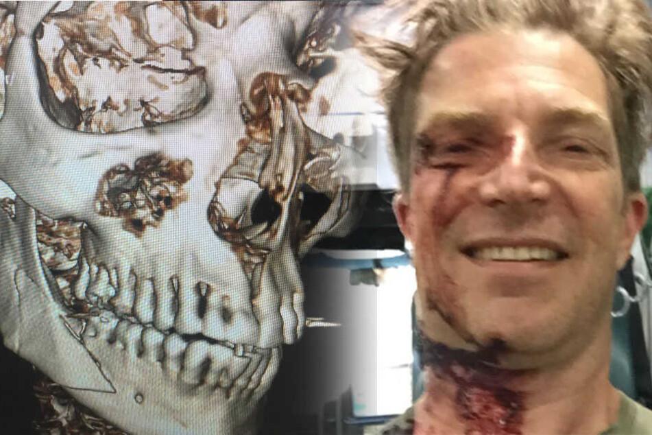 Nachdem der 48-Jährige von einem Van angefahren wurde, musste ihm eine Titanplatte eingesetzt werden.