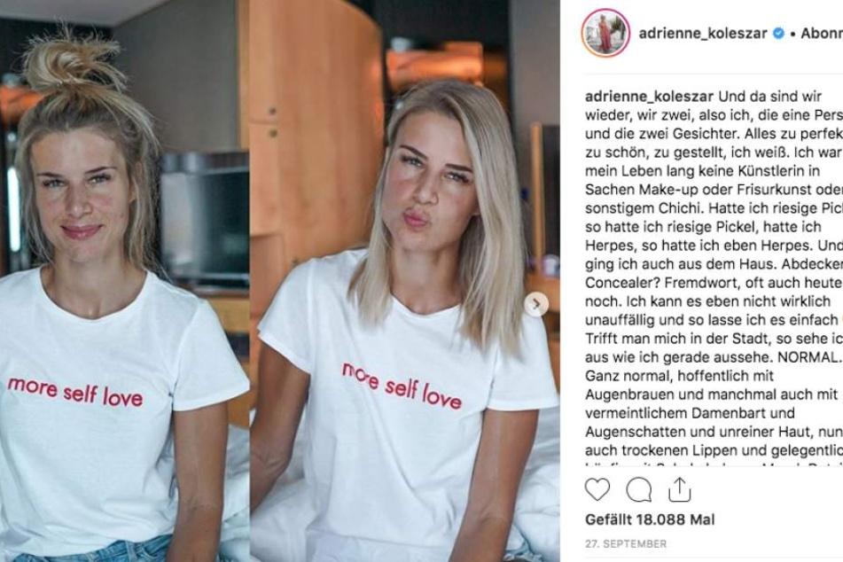 Adrienne zeigt sich gern ungeschminkt und redet offen und ehrlich über ihre Hautprobleme. Ihre Follower lieben ihre authentische Art.