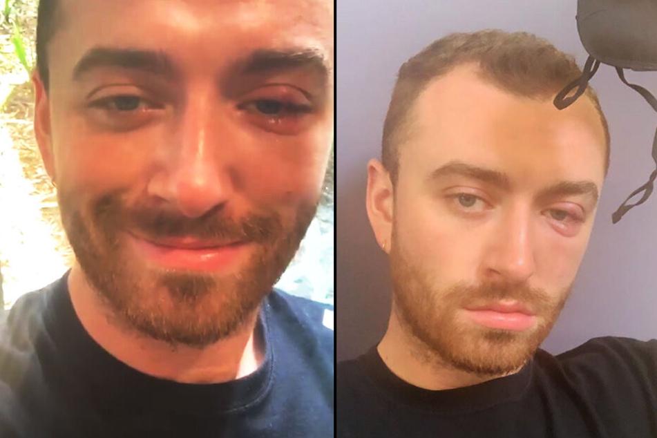 In seiner Story postete Smith Bilder von seinem entzündeten Auge.