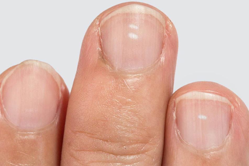 Wieso habe ich weiße Flecken auf den Fingernägeln?
