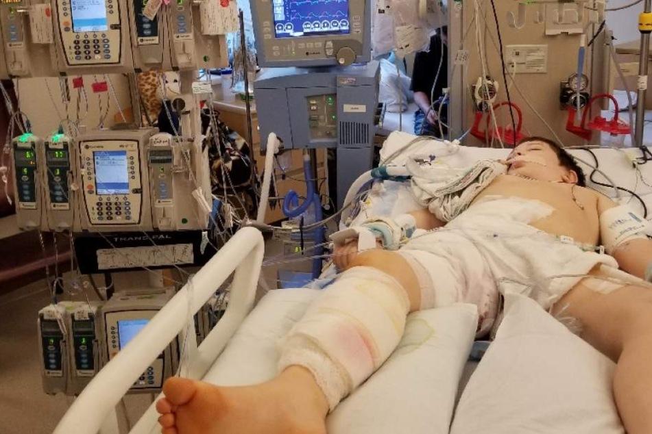Liam musste sehr oft operiert werden. Doch die Ärzte konnten sein Leben nicht retten.