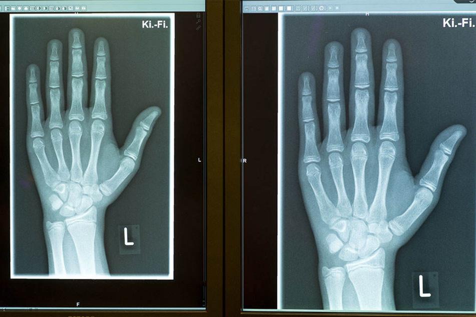 Die Röntgenbilder zeigen die linke Hand eines 15-Jährigen, aufgenommen am 12.01.2018 in einer Radiologischen Praxis in Friedrichshafen.