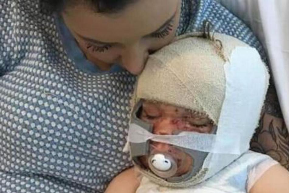 Baby (1) mit schwersten Verbrennungen: Die tragischen Schuldgefühle der Mutter