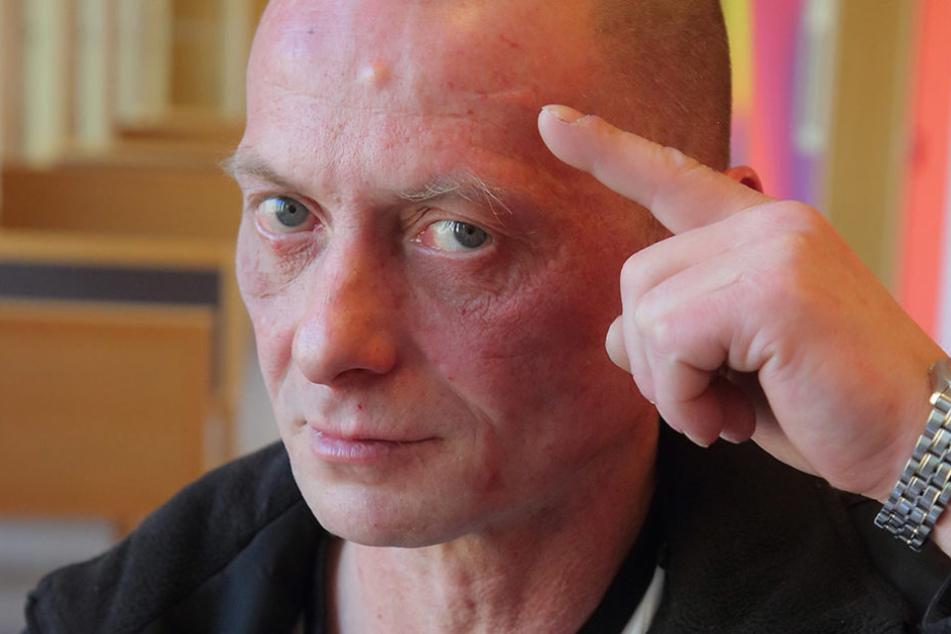 Rene K. (45) zeigt die Narbe an der Stirn, die ihm der Nachbar beibrachte.