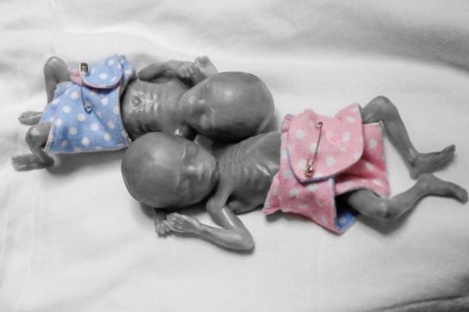 Die Drillinge Natalie und Mason kamen mit 20 Wochen auf die Welt und starben kurz nach der Geburt.