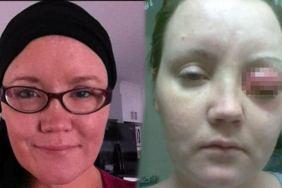 Frau setzt sich Kontaktlinsen ein, 30 Minuten später verspürt sie höllische Schmerzen