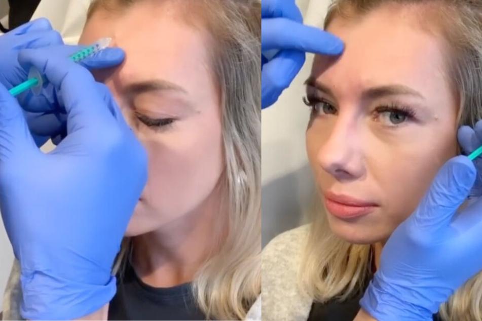 Janika ließ ihre Stirn Anfang Dezember mit Botox behandeln.
