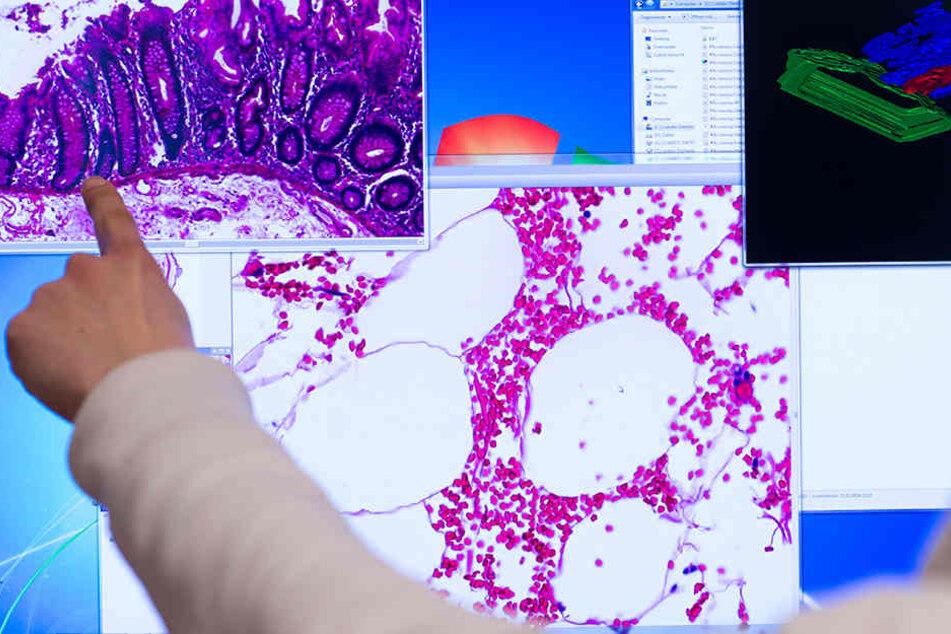 Die Diagnose Krebs markiert für jeden Betroffenen einen schlimmen Einschnitt im Leben.