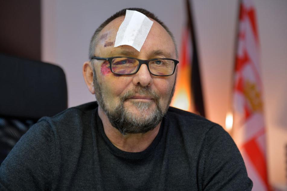Frank Magnitz, Landesvorsitzender der AfD Bremen, wurde am 07.01.2019 von unbekannten Tätern angegriffen.