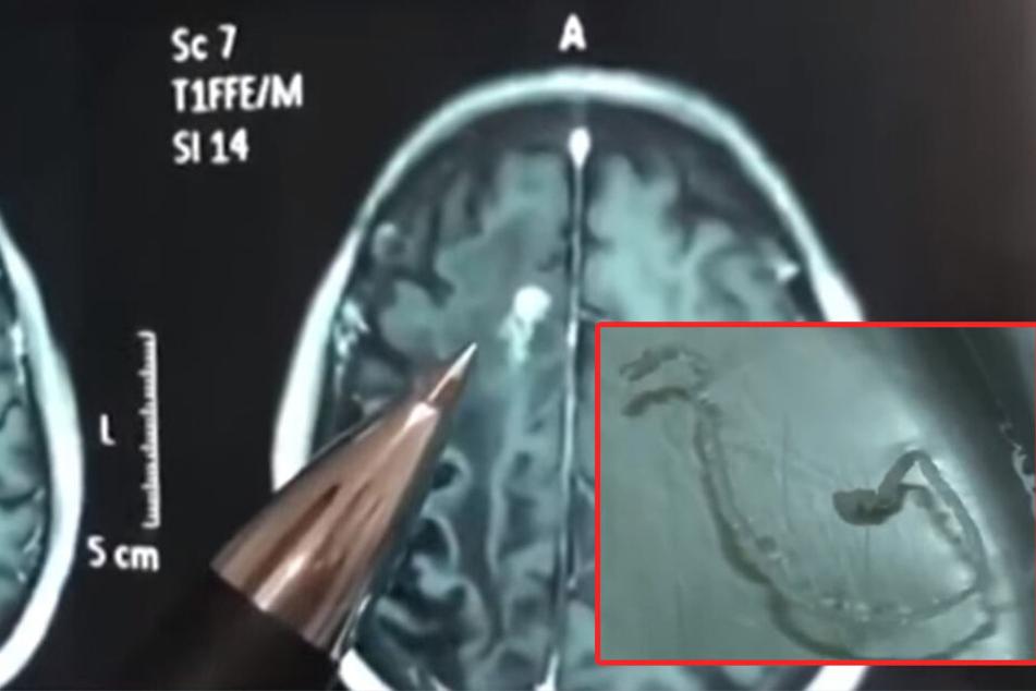 Mann trinkt Wasser und hat 30 Jahre lang Kopfschmerzen: Was die Ärzte entdecken, ist erschreckend!