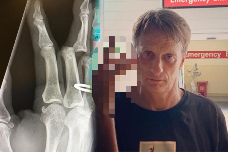 Sportunfall bei Skate-Profi: Tony Hawk postet ekliges Bild