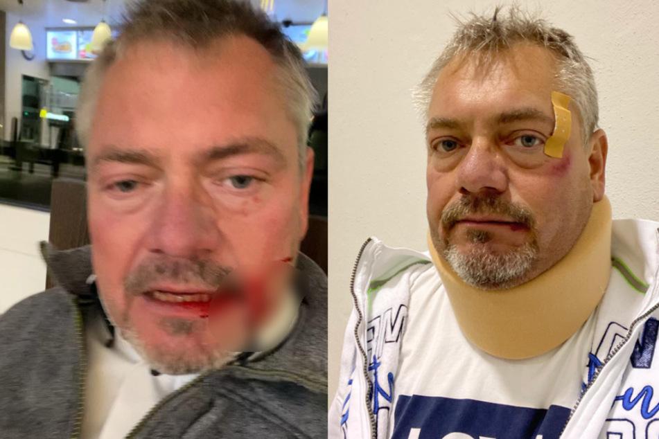 """Schlägerei an Zapfsäule: """"Pegida-Anwalt"""" Frank Hannig schwer verprügelt"""