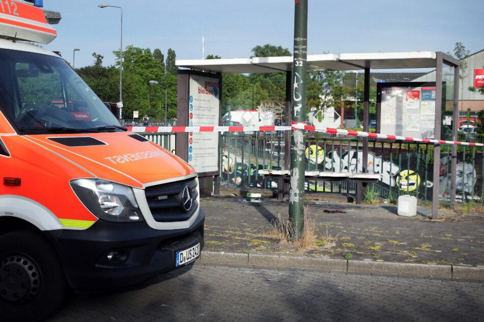Der 70-Jährige stand an einer Bushaltestelle plötzlich in Flammen.