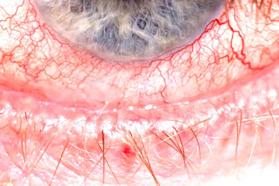 Wenn die Augen rot sind und jucken, denken viele zunächst an eine Bindehautentzündung.