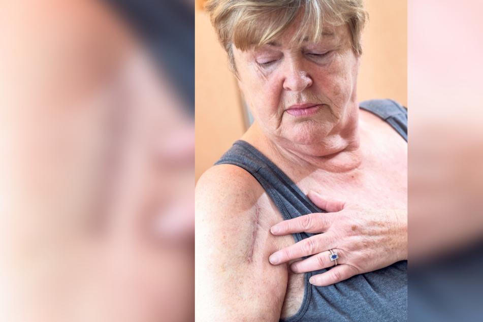 Ewige Narbe, Dauer-Schmerz: Gudrun Hölzel hat Stifte und Platte in der rechten Schulter. Den Arm kann sie schlecht heben.