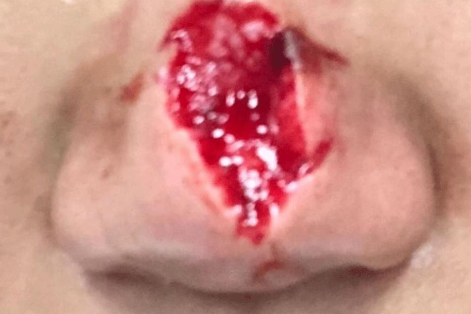 Ein großes Stück der Nase fehlt.