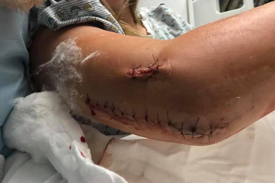 Hanna Jones (18) zeigte ihre schweren Verletzungen auf Facebook.