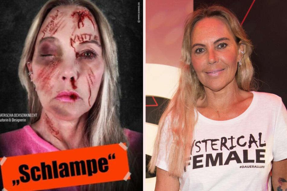 Natascha Ochsenknecht schockt Fans mit Anti-Mobbing-Foto