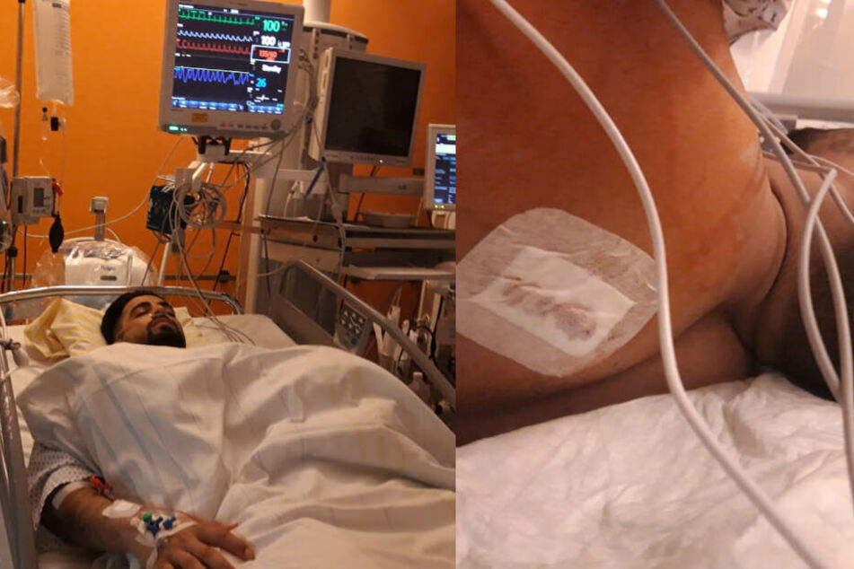 Das Opfer der Messer-Attacke im Januar: Ismail I. (21) wurde in den Rücken gestochen. Mit lebensbedrohlichen Verletzungen kam er auf die Intensivstation.