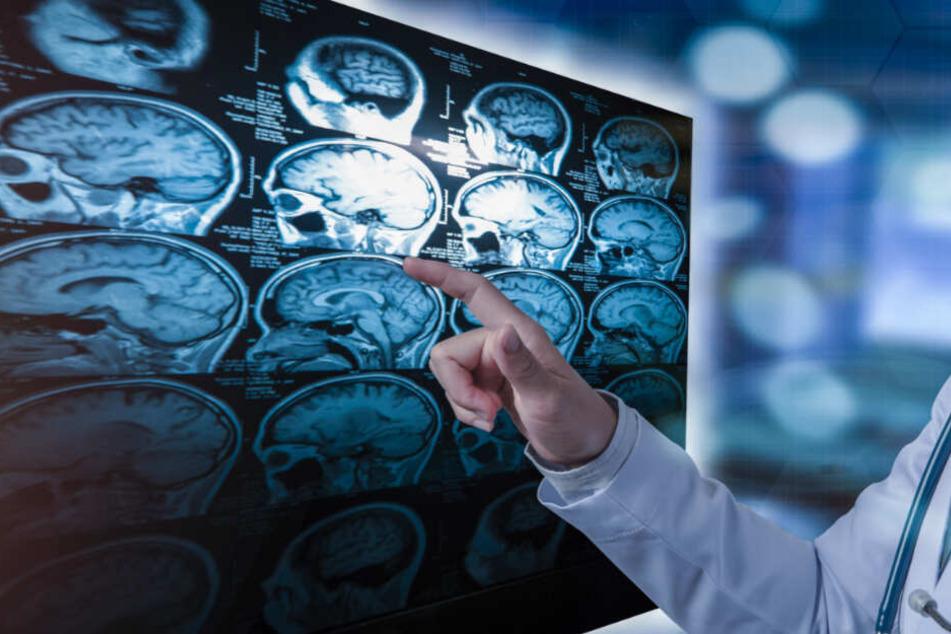 Noch kann das menschliche Gehirn nach Schlaganfällen nur sehr mühsam neue Nervenzellen bilden.
