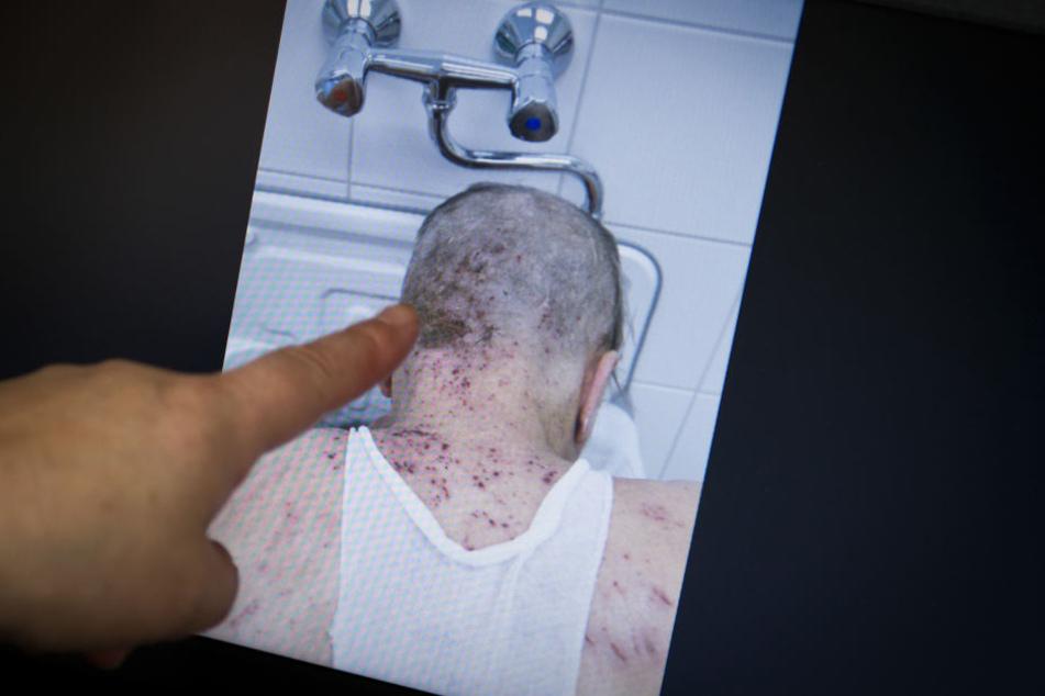 Auf dem Vormarsch: Das Foto zeigt einen von Krätze befallenen Patienten.