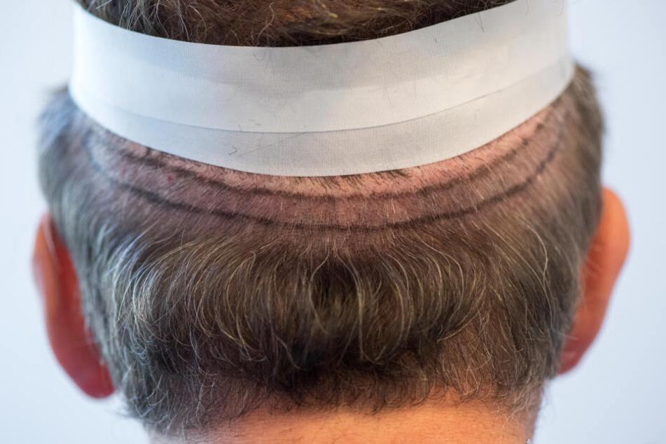 Bei der Streifenentnahme wird da, wo noch genügend Haare wachsen, ein schmaler Haarstreifen entnommen, um daraus die Haarwurzeln zu entnehmen. (Archivbild)