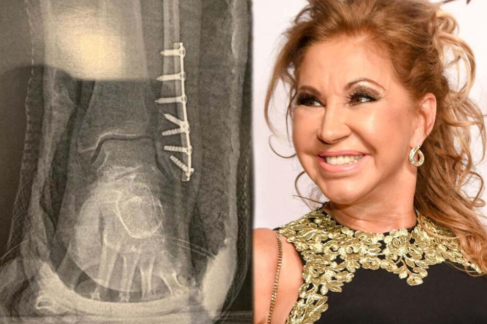 Carmen Geiss zeigt erschreckende Röntgen-Fotos