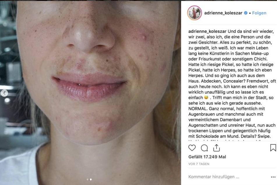 """Mutiges Foto: Adrienne zeigt sich im Gesicht komplett """"nackt"""", ohne Schminke."""
