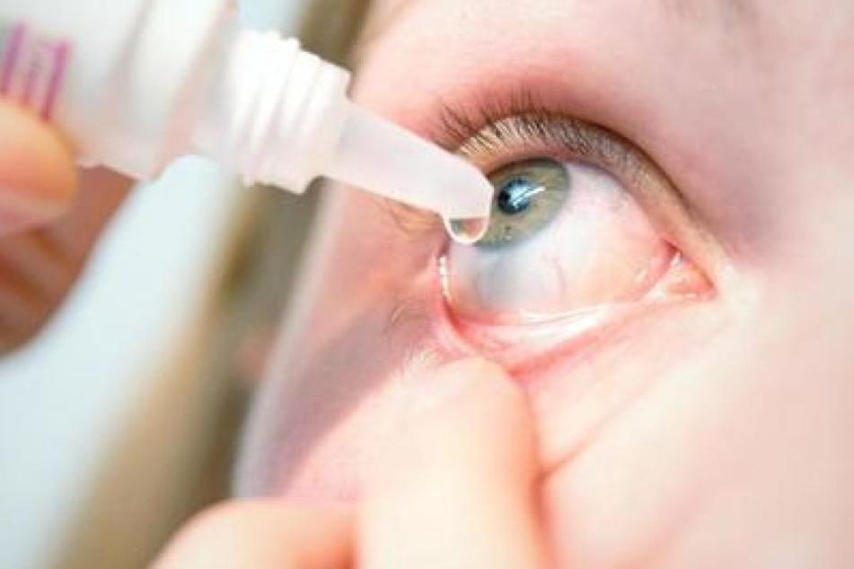 Nur ein Augenarzt kann die Augengrippe feststellen, die häufig mit einer Bindehautentzündung verwechselt wird. (Symbolbild)