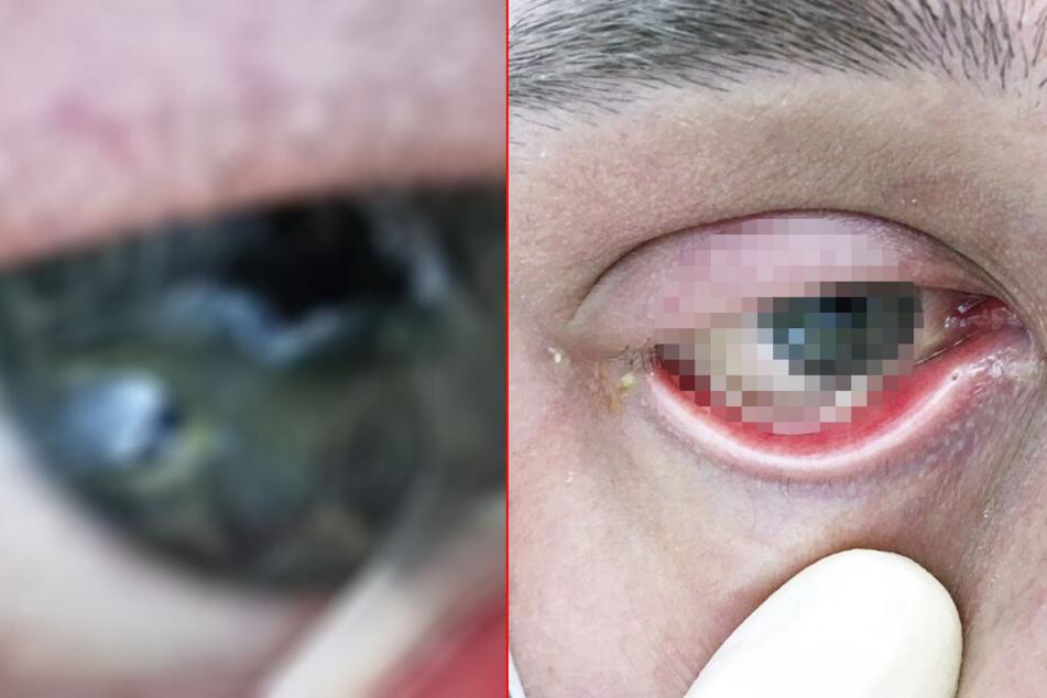 """Unfassbare Fotos: Patient ist geschockt, als sein Auge plötzlich """"zerfällt"""""""