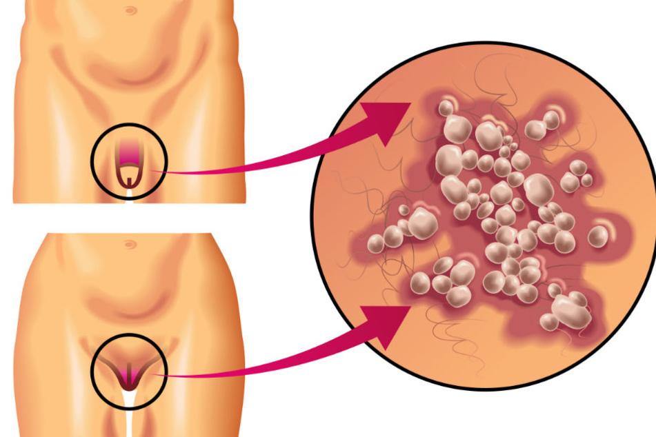 Genitalherpes ist eine sexuell übertragbare Erkrankung, die durch das Herpes simplex-Virus Typ 2 verursacht wird.