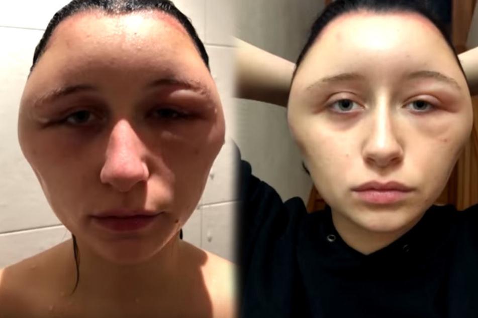 Das Gesicht der 19-Jährigen schwoll massiv an.