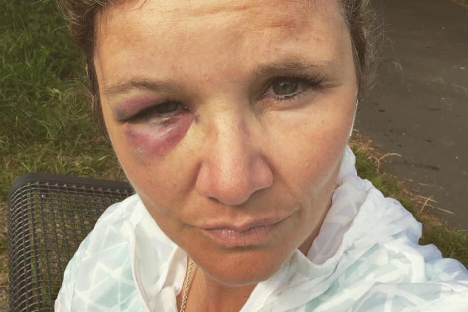 Sandra Kiriasis zog sich ein schmerzhaftes blaues Auge zu.