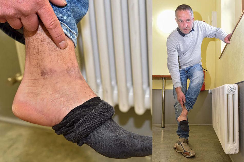 Rico L. (43) zeigt, wo das Geschoss den Fuß (Kreis) traf. Der Landwirt wurde vom Trecker geschossen.