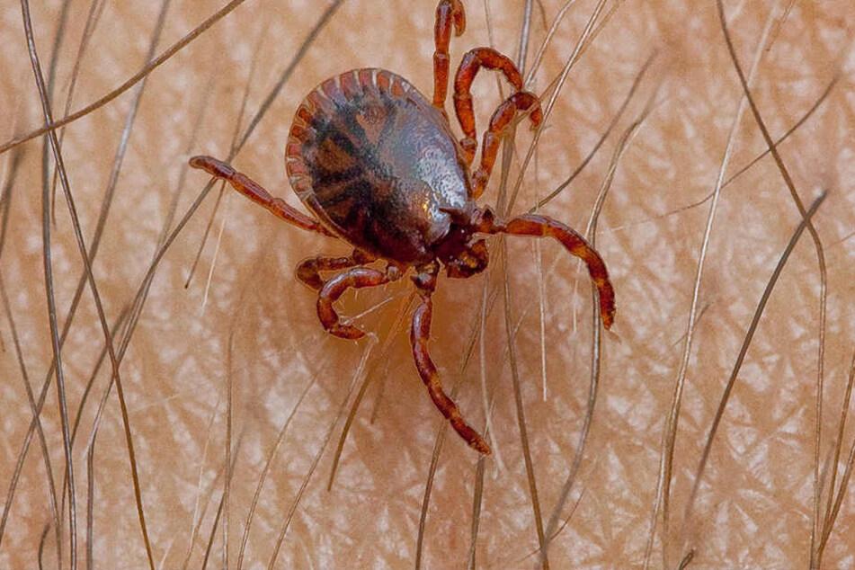 Kleiner Biss, große Probleme: Von Zecken übertragene Borrelien können zehn Jahre lang unerkannt im Körper überleben, bevor die Krankheit ausbricht.