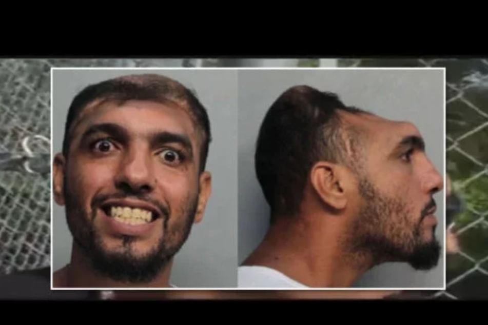 "Carlos Rodriguez (33) - ""the half headed man""."